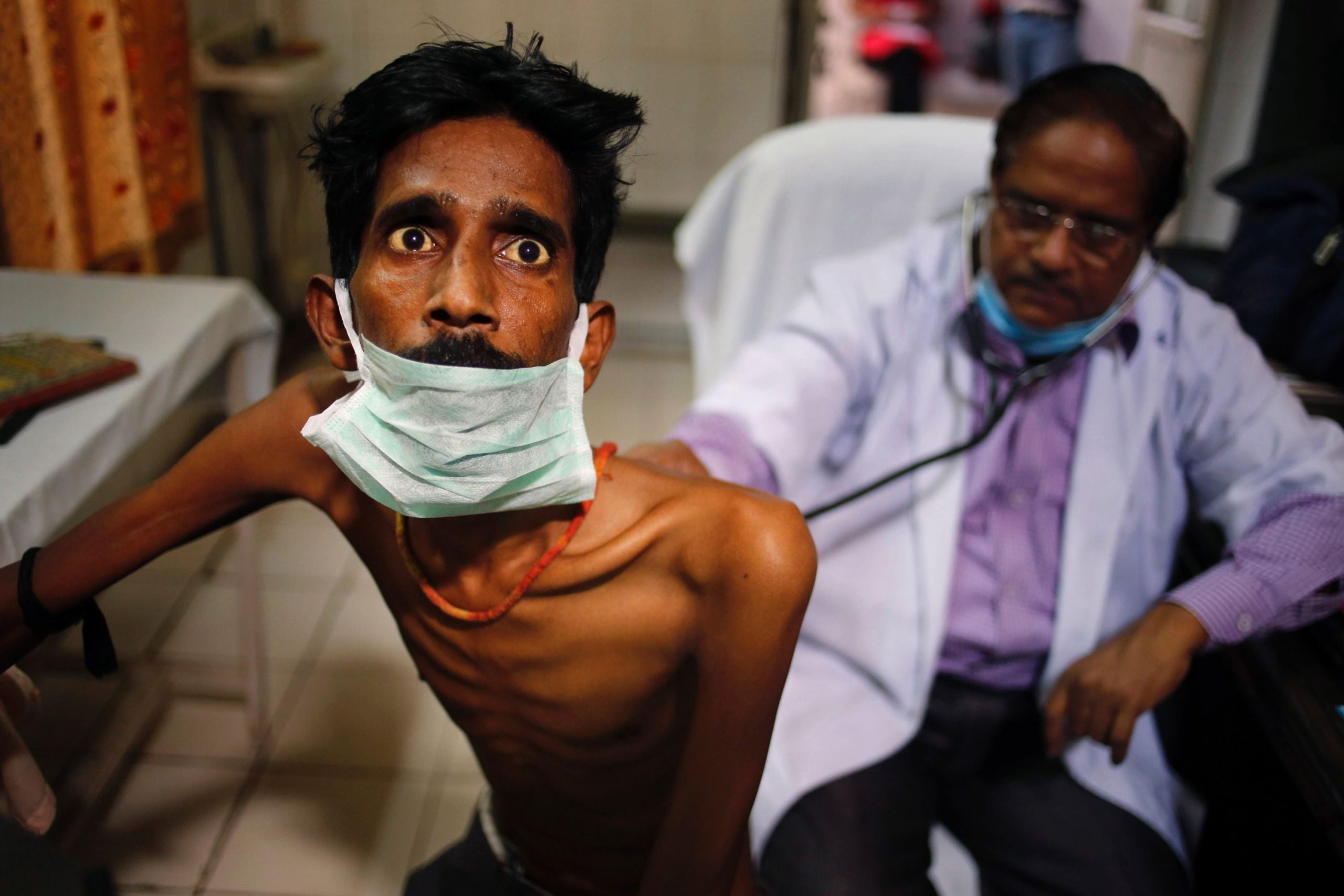 India accounts for 26% of Global TB Reported Cases